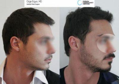 Beard_Transplant_OE_1_2