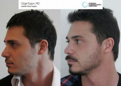 Beard_Transplant_OE_1_3