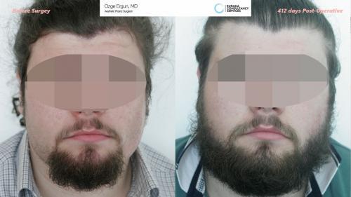 Beard_Transplant_OE_2_1