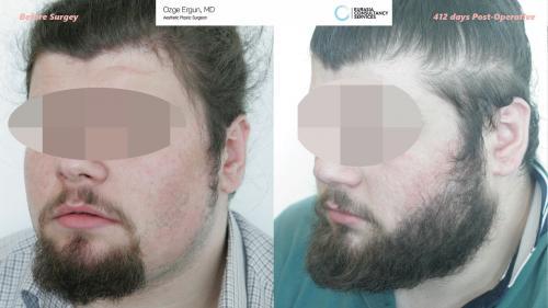 Beard_Transplant_OE_2_2