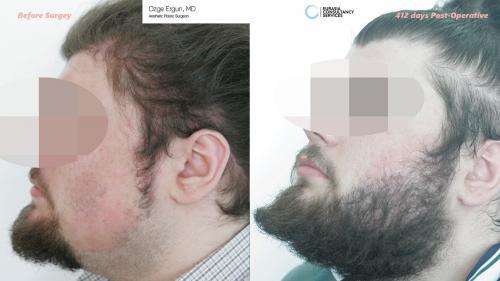 Beard_Transplant_OE_2_3