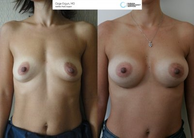 Breast_Implant_11