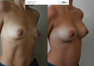 Breast_Implant_12