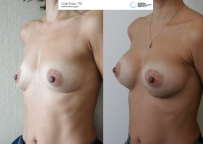 Breast_Implant_13