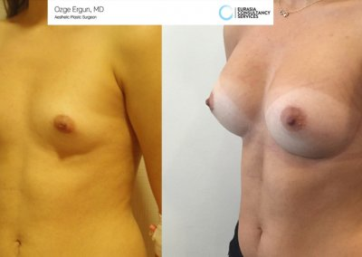 Breast_Implant_15