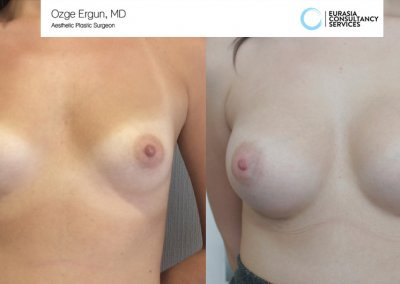 Breast_Implant_16