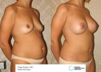 Breast_Implant_19