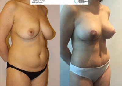 Breast_Implant_TummyTuck1