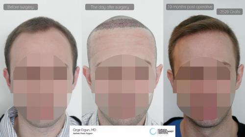 Hair_Transplant_OE_10_1
