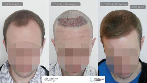 Hair_Transplant_OE_10_2