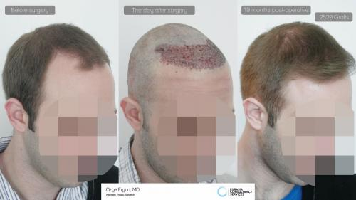 Hair_Transplant_OE_10_3_
