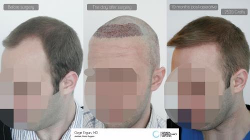 Hair_Transplant_OE_10_4