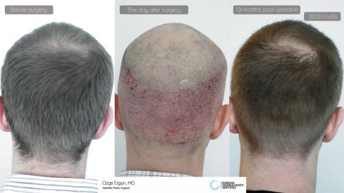 Hair_Transplant_OE_10_5_