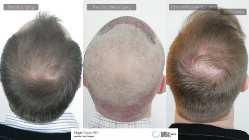 Hair_Transplant_OE_10_6