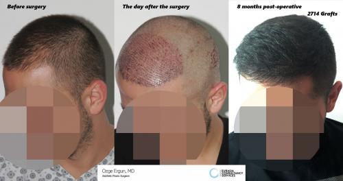 Hair_Transplant_OE_11_3_