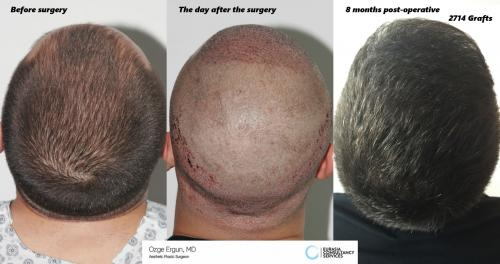 Hair_Transplant_OE_11_6_