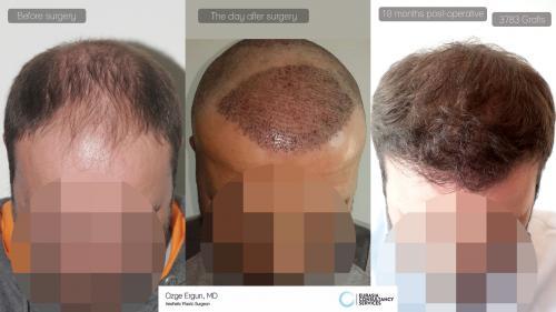 Hair_Transplant_OE_13_1