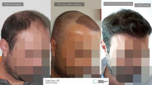 Hair_Transplant_OE_13_2