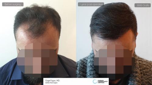 Hair_Transplant_OE_14_1