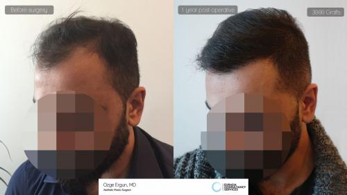 Hair_Transplant_OE_14_2