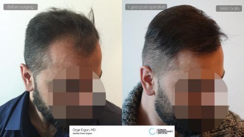 Hair_Transplant_OE_14_3