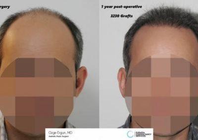 Hair_Transplant_OE_15_1