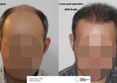 Hair_Transplant_OE_15_2