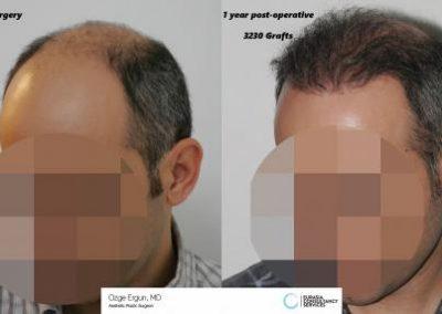 Hair_Transplant_OE_15_4_