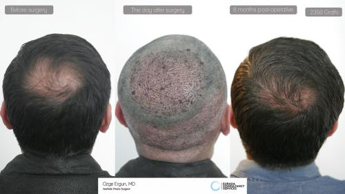 Hair_Transplant_OE_16_