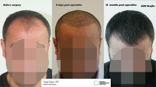 Hair_Transplant_OE_17_1