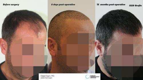 Hair_Transplant_OE_17_3