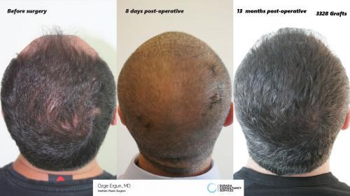 Hair_Transplant_OE_17_4
