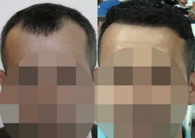 Hair_Transplant_OE_18