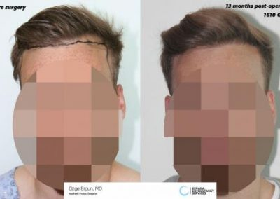 Hair_Transplant_OE_19