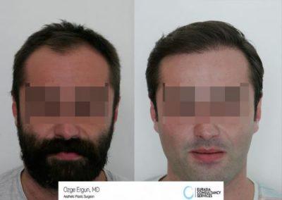 Hair_Transplant_OE_1_1
