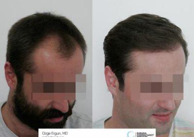Hair_Transplant_OE_1_3_