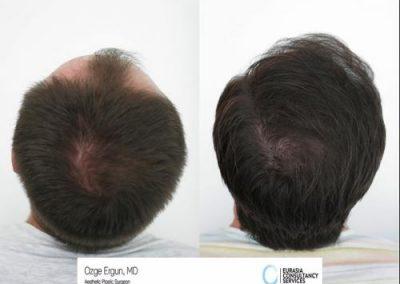 Hair_Transplant_OE_1_4