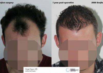 Hair_Transplant_OE_20_1_