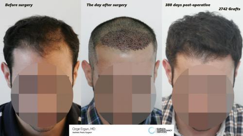 Hair_Transplant_OE_21_1