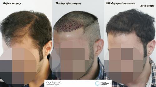 Hair_Transplant_OE_21_2_