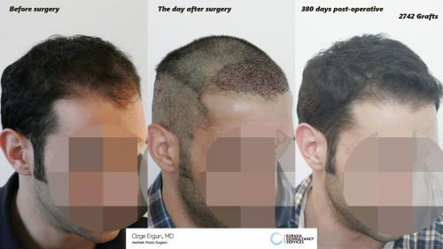Hair_Transplant_OE_21_3