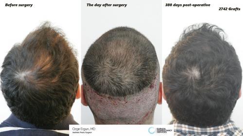 Hair_Transplant_OE_21_4_