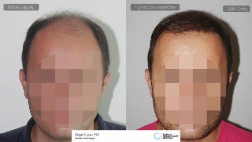 Hair_Transplant_OE_22