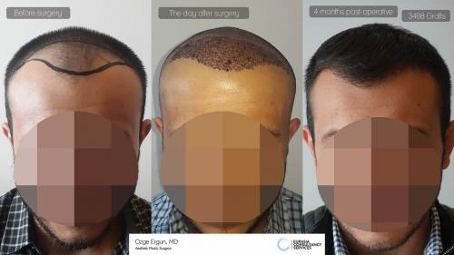 Hair_Transplant_OE_23_1