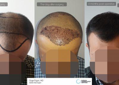 Hair_Transplant_OE_23_2_