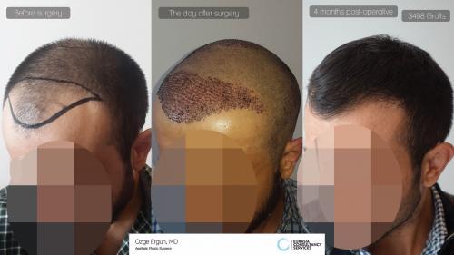 Hair_Transplant_OE_23_3_