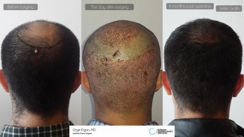 Hair_Transplant_OE_23_5