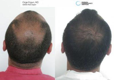 Hair_Transplant_OE_26
