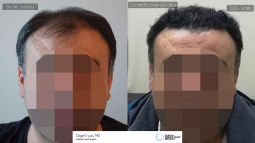 Hair_Transplant_OE_27-45