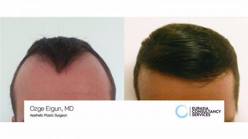 Hair_Transplant_OE_27